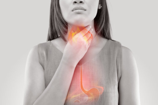 Diagnosing Gastroesophageal Reflux Disease (GERD)